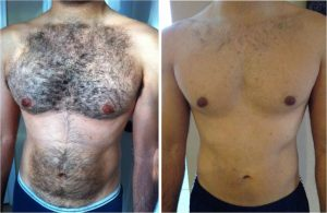 Laser hair removal before and after 1