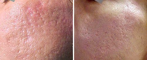 Laser Skin Resurfacing by Fotona SP Dynamis