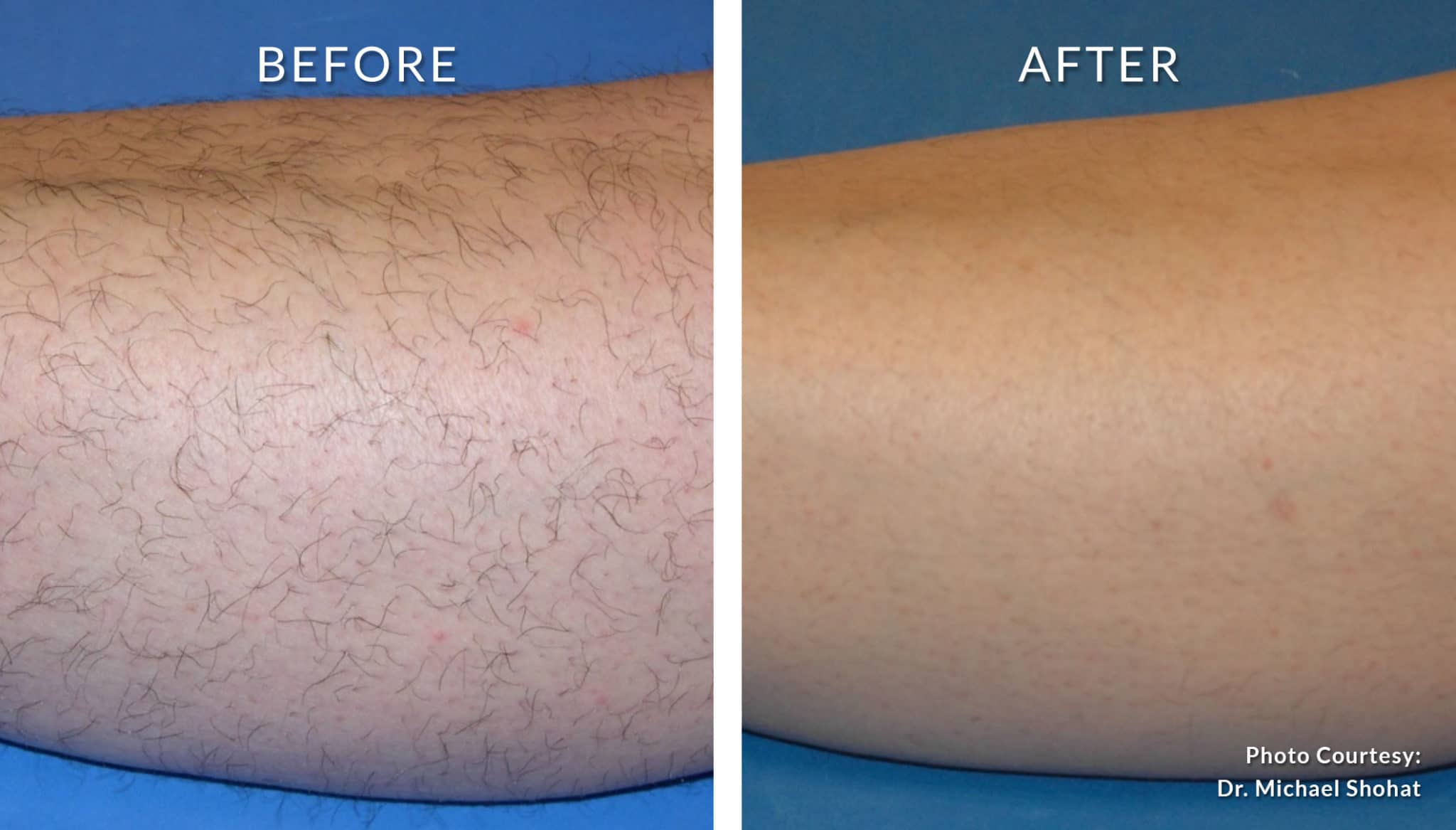 Laser Hair Removal Before And After Amjad Medical