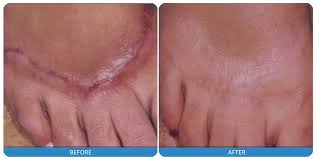 Scar Reduction Laser Treatment